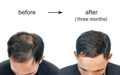 Male Pattern Baldness: Reverse it Naturally!