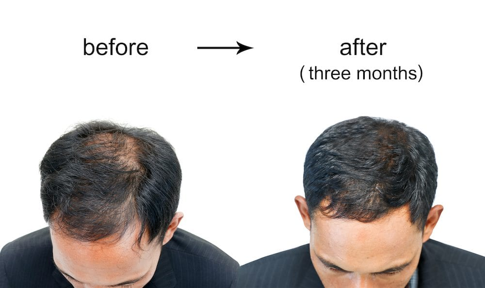 Male Pattern Baldness Featured Image